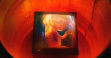 ALBUM: GoldLink – Haram!
